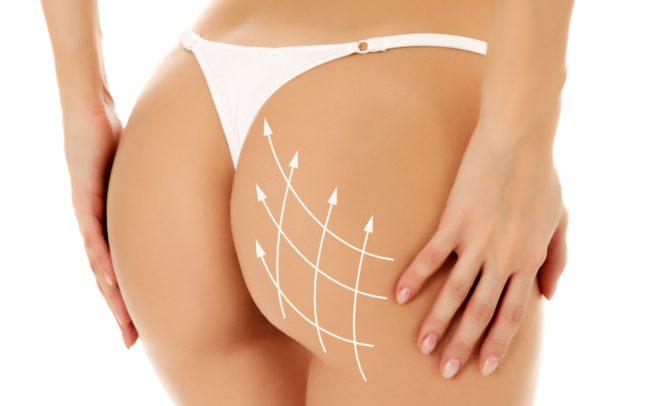 prix chirurgie esthétique des fesses