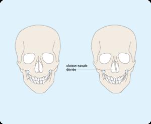 Schéma d'une déviation de la cloison nasale