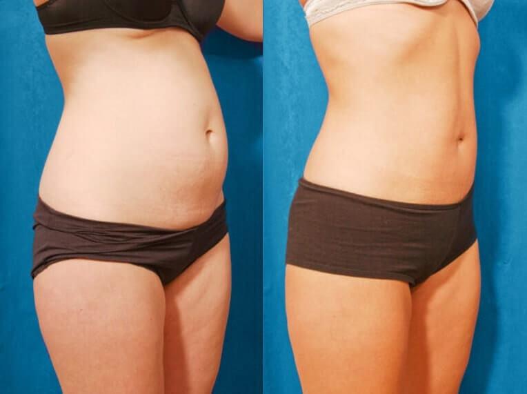 chirurgie abdomen tunisie