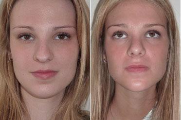 chirurgie esthetique nez