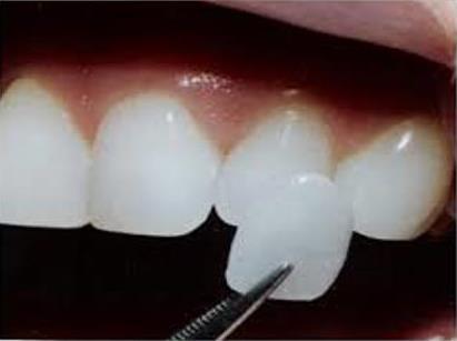 prix facettes dentaires Tunisie