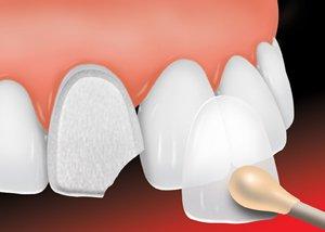 5 choses à savoir avant d'opter pour facettes dentaires