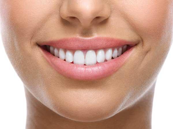 facettes dentaires Tunisie prix