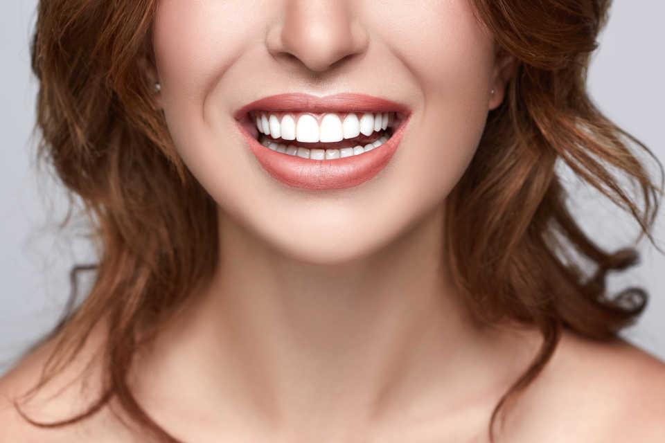hollywood smile prix tunisie