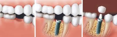 pose d'un implant dentaire