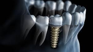 implant dentaire Tunisie