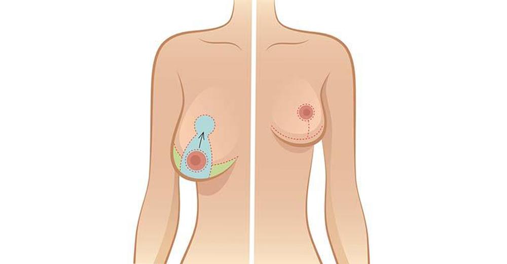 chirurgie ptose mammaire Tunisie