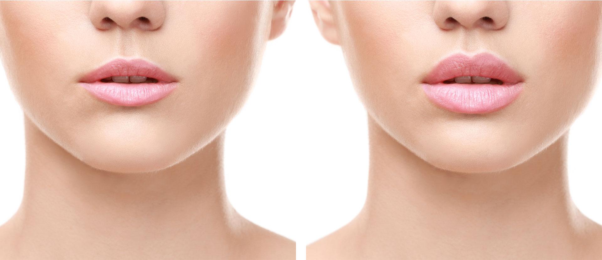 lifting de la lèvre supérieure tunisie