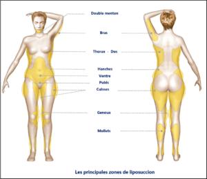 Prix liposuccion tunisie
