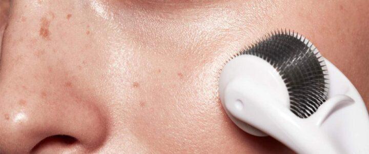 Le Microneedling : c'est quoi ? Quels sont ses bienfaits sur la peau ?