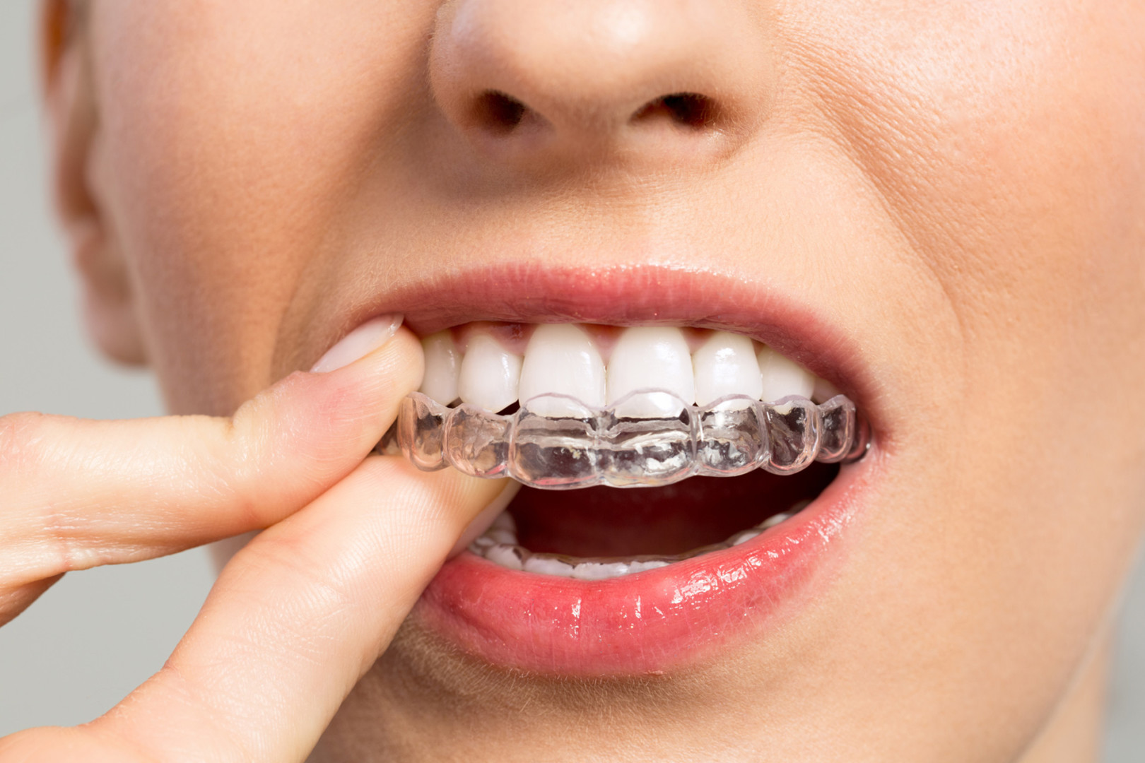 invisalign traitement